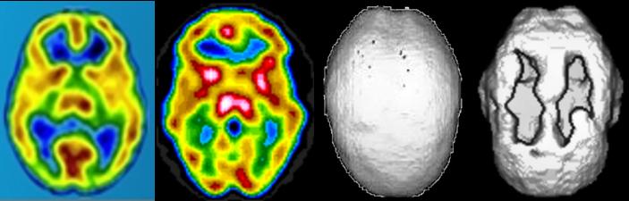 Sherri's 4 Brain Comparisons